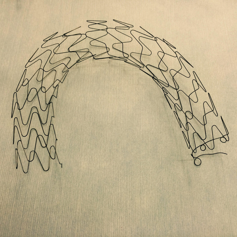 Nitinol wire formed stent